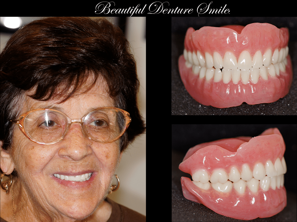 Beautiful Denture Smile Slide 4