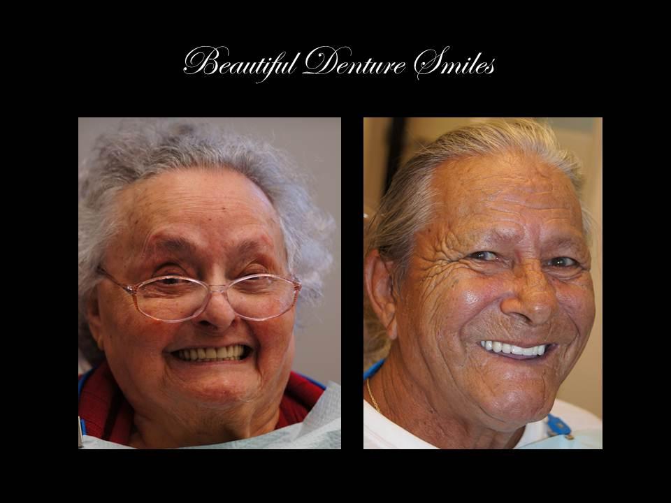 Ernesto Carmona - Denture Smiles