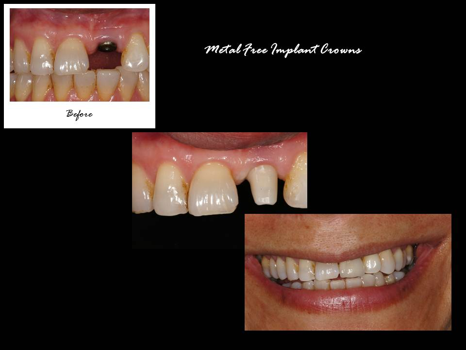 Ernesto Carmona - Metal Free Implant Crowns
