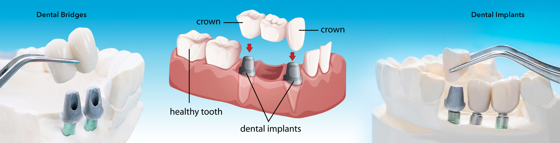 the-difference-between-bridges-and-partial-dentures
