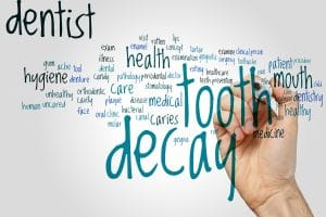 What Are The Stages Of Tooth Decay? - Austin Prosthodontics