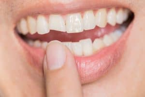 What Do I Do About My Damaged Tooth?